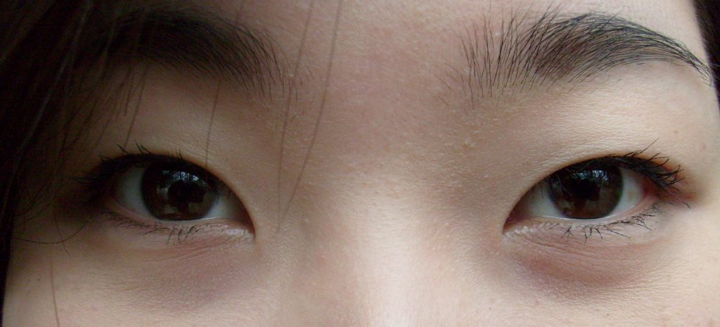 The Western Eye: How I Learned to Live With My Eyelids